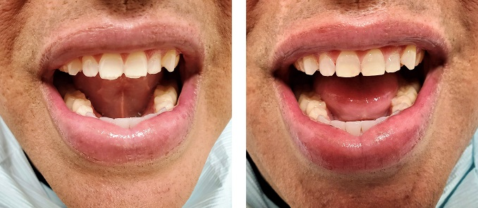 occlusal adjustment
